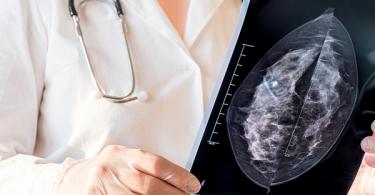 Doctor examining breast x-ray