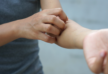 Person scratching arm from food allergy