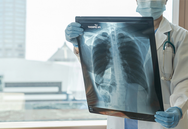 Physician looking at an x-ray of a patients lung
